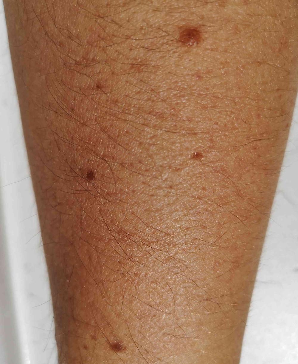 multiple naevi (moles)