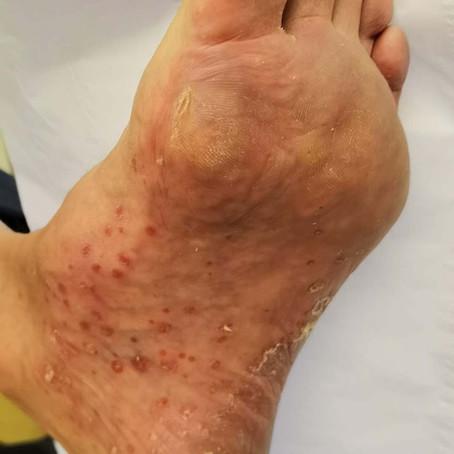 Palmoplantar Pustulosis or Psoriasis?