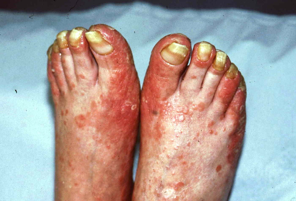 psoriasis nails foot expert