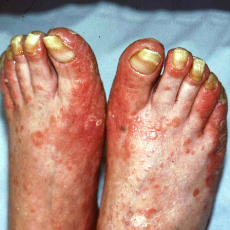Psoriatic Nails – can they be effectively treated?
