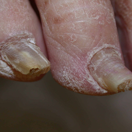Drug Developments in Onychomycosis