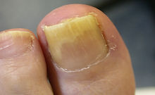 Oral Zinc – a useful adjunct in the treatment of plantar warts?