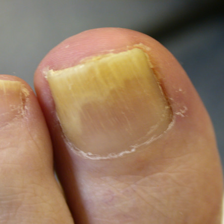 Home treatments for onychomycosis are they any good?