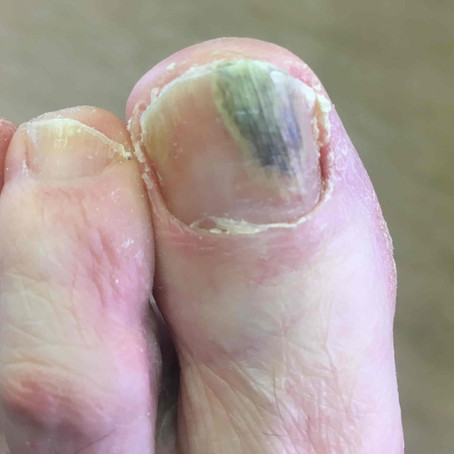 The impact of onychomycosis on the patient
