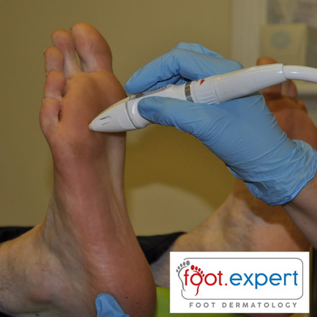 Treating Plantar Warts with Local Anaesthetic Infiltration - A Cautionary Tale.