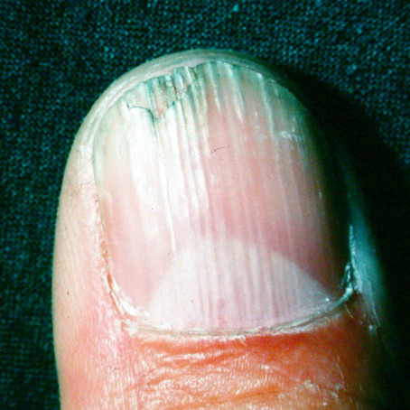 Nail Changes in Atopic Dermatitis