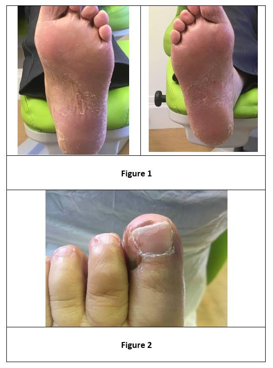 Hand Foot Syndrome www.foot.expert
