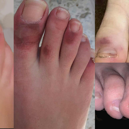 Chilblains in young feet with COVID-19