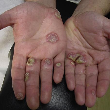 Syphilis - a plantar problem