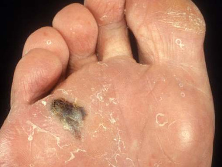 Melanoma & the foot - Can you help?