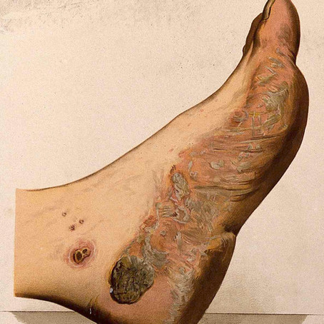 Palmo-plantar Pustulosis - a different disease to psoriasis