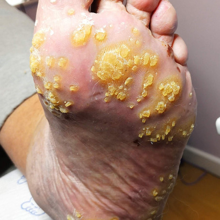 Getting to the point – a case of spiny keratoderma