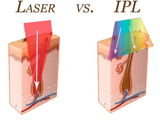 IPL vs. Laser Hair Removal
