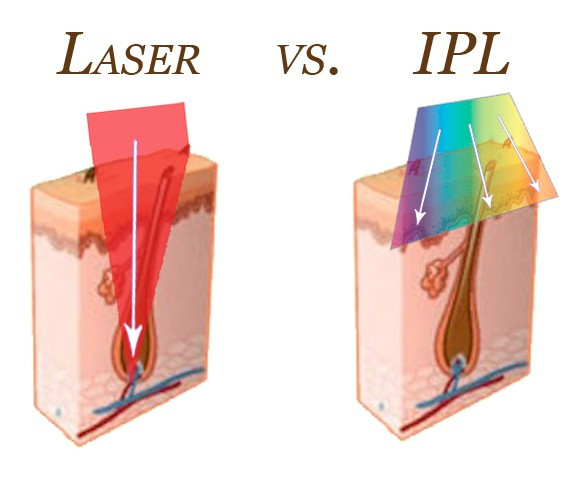 IPL vs. Laser - Laser Solutions by Kaylee - Laser Hair Removal - Beecaves - Hill Country Galleria - Lakeway