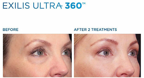 Exilis-ultra-before-and-after-.jpeg