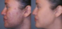 acne_scar_removal.jpg