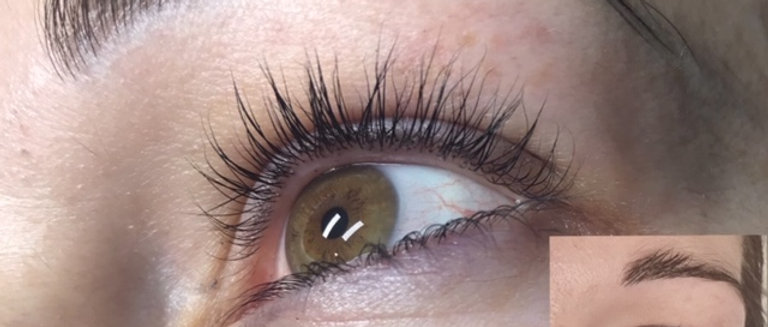 Eyelash Enhancement from