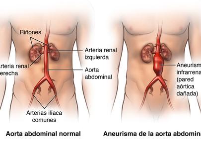Aneurisma de aorta abdominal ¿Es una enfermedad riesgosa?