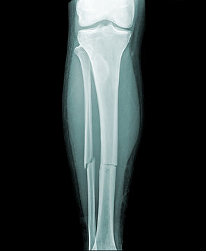 complete-fracture-of-the-lower-leg-13362