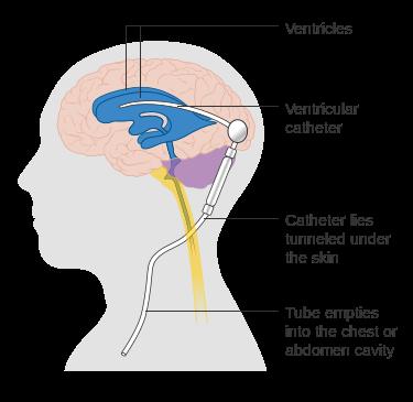 375px-Diagram_showing_a_brain_shunt_CRUK