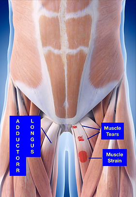 Muscle Injuries Page