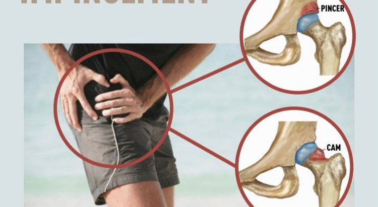 Femoro-acetabular Impingement in Soccer Players: Is your groin pain a problem of the hip joint ?