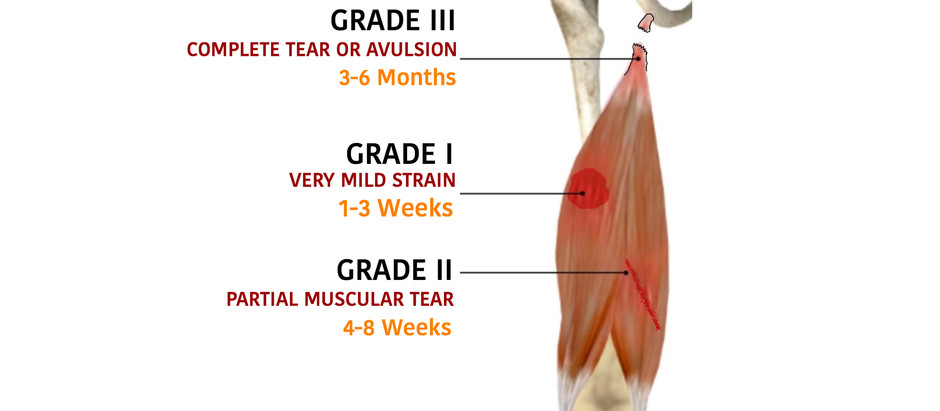 Hamstrings Injuries in Soccer Players