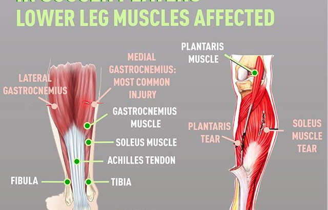 Do you keep pulling your calf ...? Learn more about Calf Muscle Injuries in Adult Soccer Players