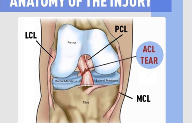 Anterior Cruciate Ligament Injuries in Soccer Players | Weston | Florida