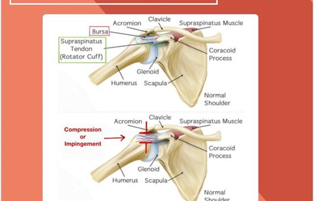 Shoulder Impingement - Learn what to do to improve that nagging shoulder pain...
