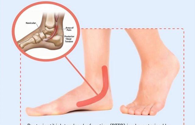 Inner Ankle Pain ? Posterior Tibial Dysfunction