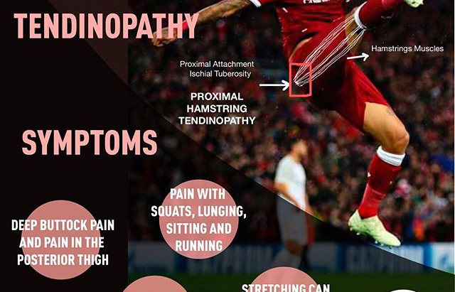 Proximal Hamstring Tendinopathy in Runners and Soccer Players  | Weston | Florida