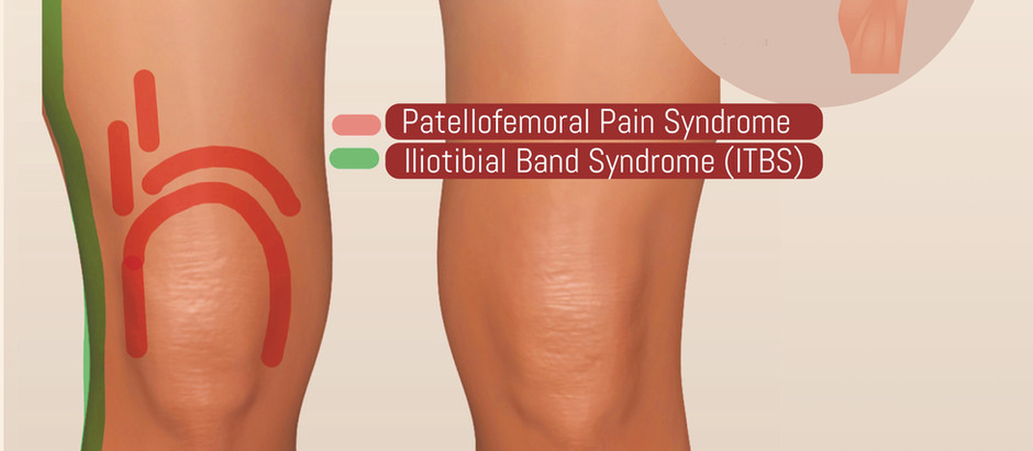 Iliotibial Band Syndrome (ITBS) in Soccer Players  | Weston | Florida