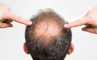 haartransplantation turkey,hairmedic,haatransplantation in bonn