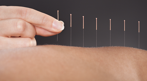Dry Needling.png