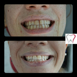 FRONT TEETH AND WHITENING