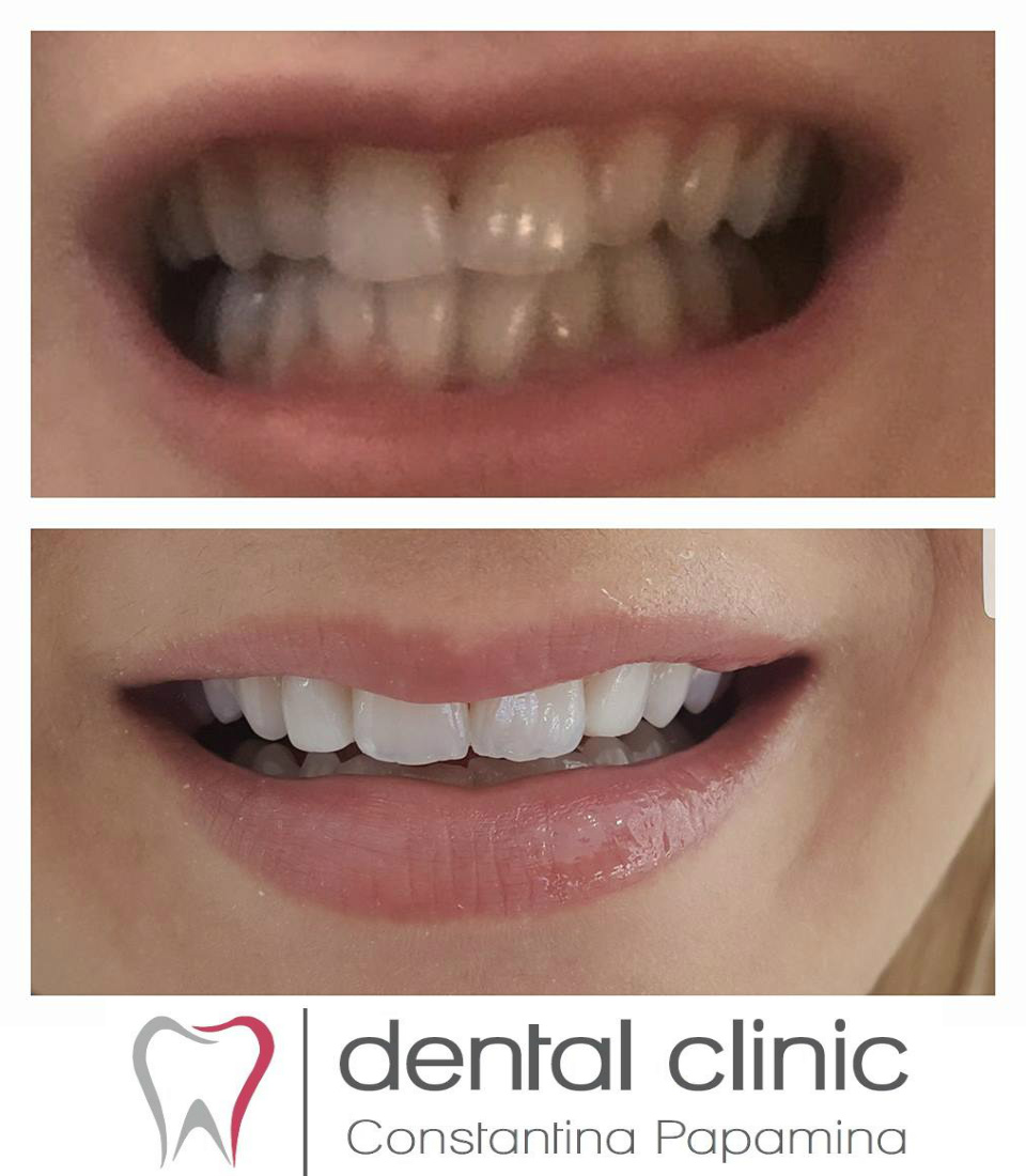 composites and whitening
