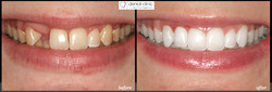 dental implant and whitening