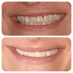 emax crowns teeth whitening