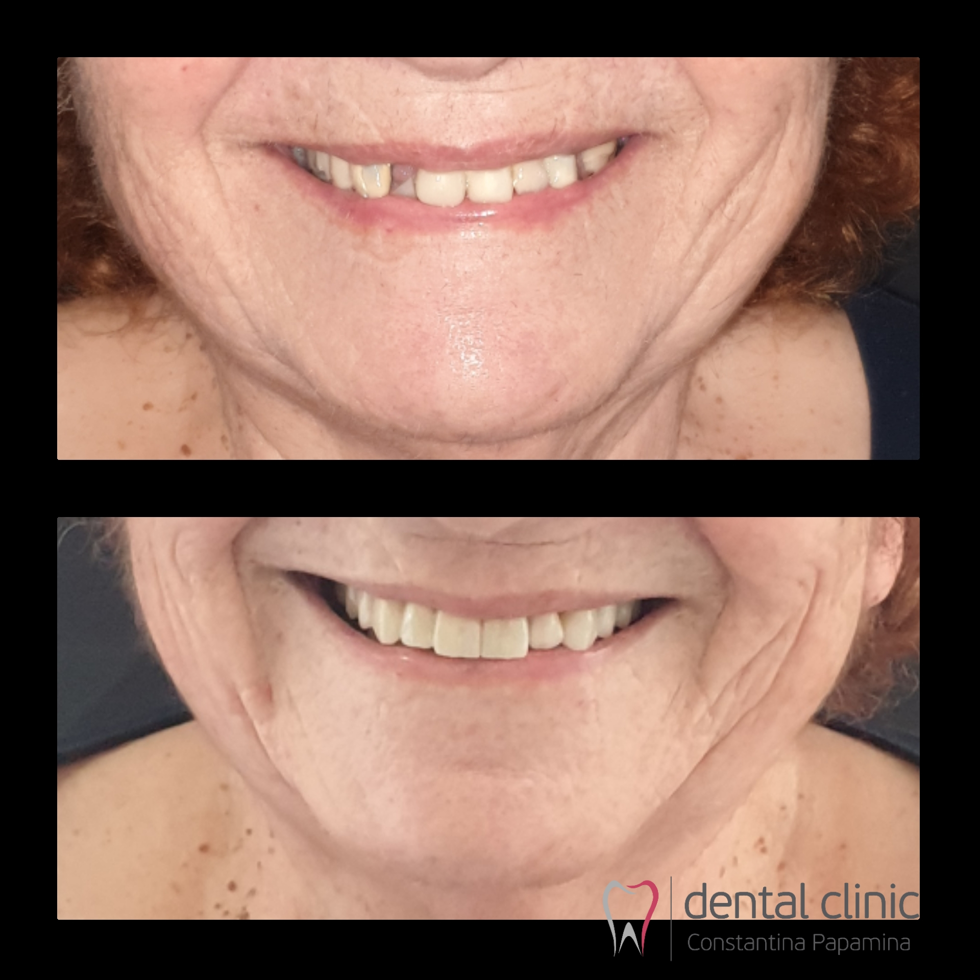 before and after zirconia crowns