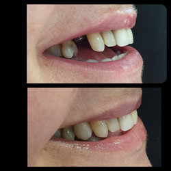 implant placed for missing tooth