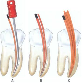 Ενδοδοντική Θεραπεία ( Απονεύρωση) - Root Canal Therapy