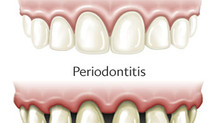 Gum Disease (Gingivitis and Periodontitis)