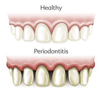 Gum Disease (Gingivitis and Periodontitis)