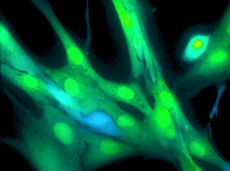 hypertrophic scar fibroblasts (human).jpg