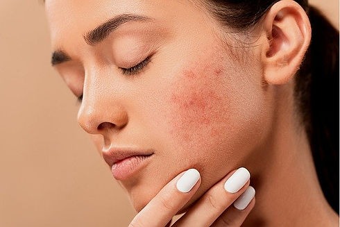 acne-5561750_640.jpg