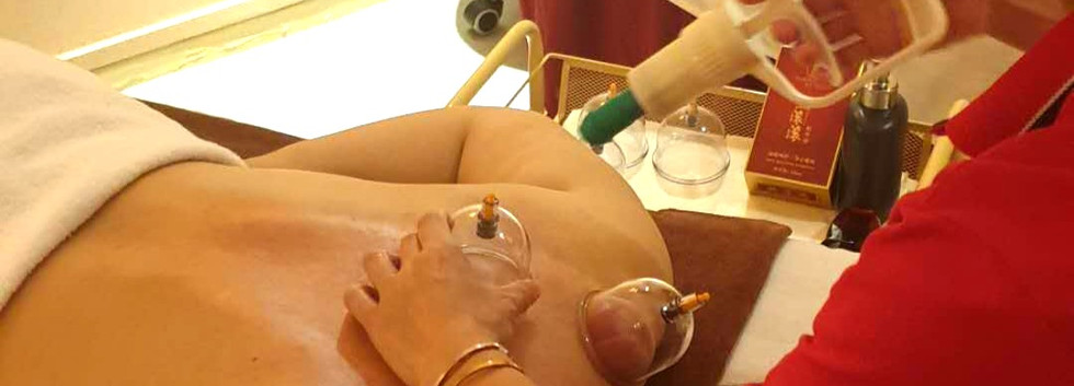Air Cupping