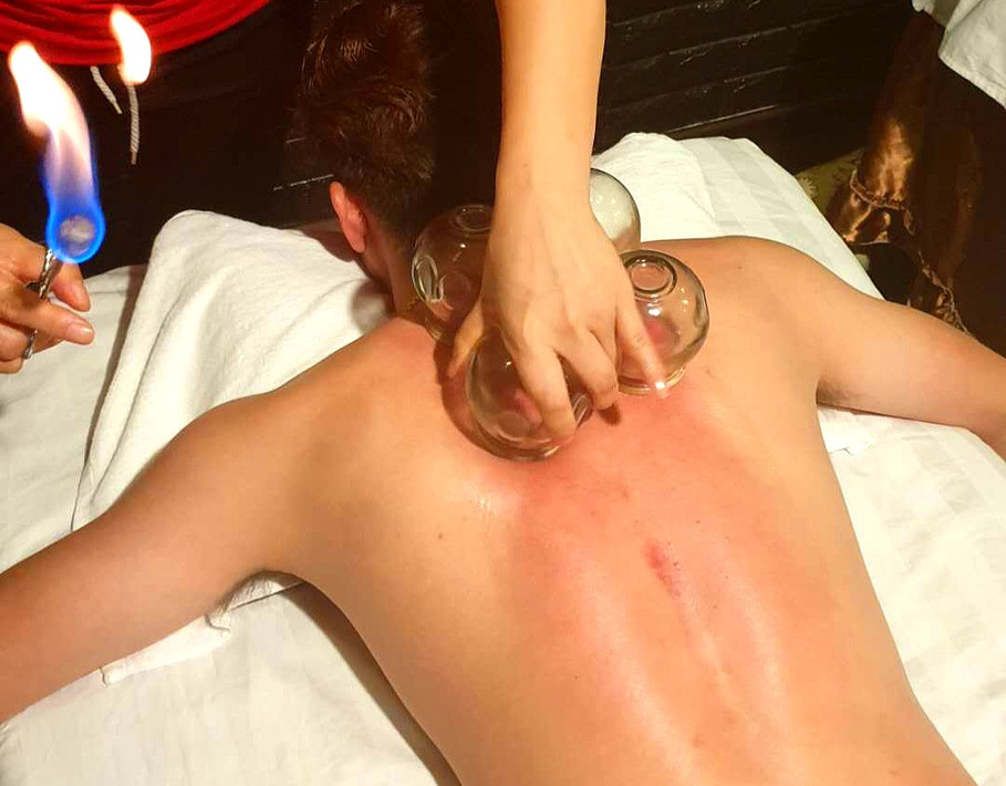 Body Cupping