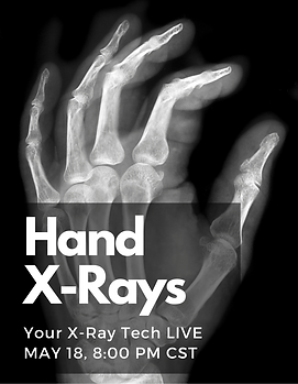 Hand X-Rays Your X-Ray Tech LIVE
