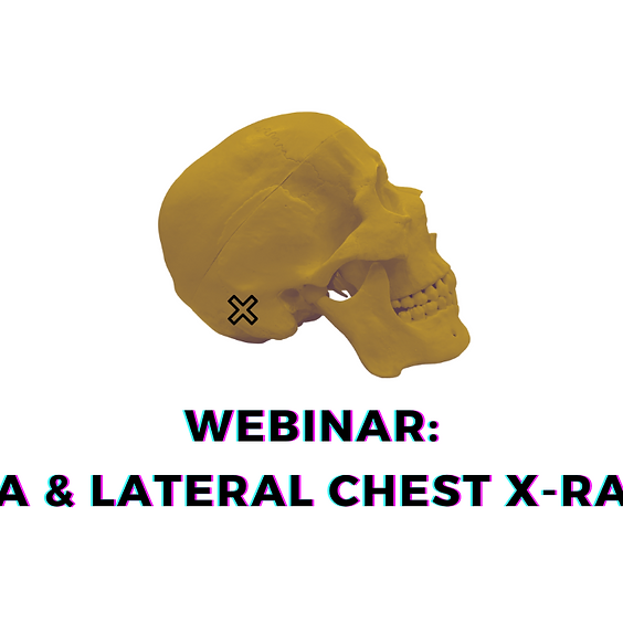 PA & Lateral Chest X-Rays